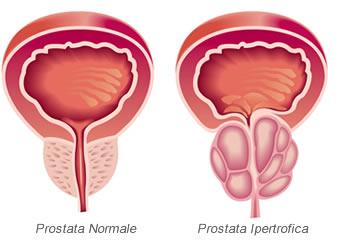 PHI - Indice di salute prostatica