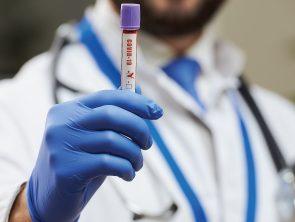 Test Sierologici CoronaVirus  San Cataldo